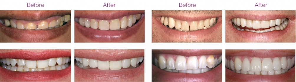 Before Porcelain Veneers and after Porcelain Veneers