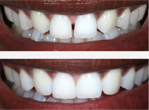 Benefits of Porcelain Veneers